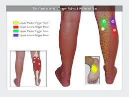 Gastrocnemius Trigger Points The Calf Cramp Trigger Points