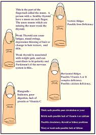 Guide To Deciphering Your Fingernail Health What To Do