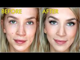 ps and scabby how to cover acne blemishes with makeup
