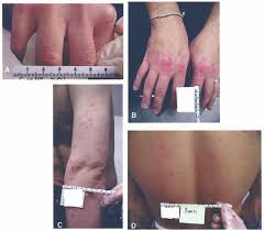 Urticaria, Exanthems, and Other Benign Dermatologic Reactions to ...