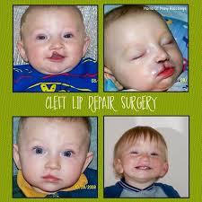 cleft lip repair our cleft lip repair surgery journey