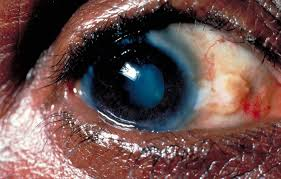 munity eye health journal trachoma