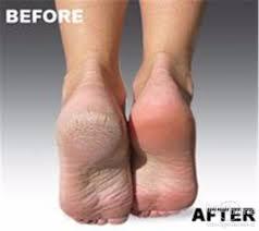 Výsledek obrázku pro škrabka na nohy