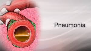 viral pneumonia information mount