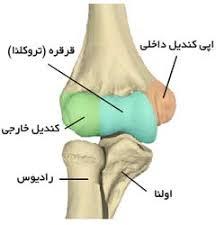 نتیجه تصویری برای شکستگی آرنج