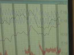 Chart Marking In Polygraph How It Works Polygraph Test
