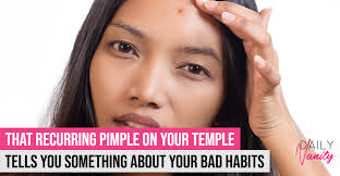 acne on temples and other pesky pimple