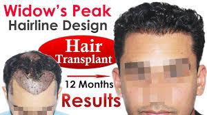 Hair Line Design Transplant New Hair Transplant Widowss Peak Hairline Design At Medispa
