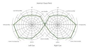 Vasrd Visual Field Chart Used To Score Visual Field For