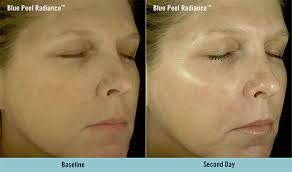 it works exfoliating peel before and after obagi blue peel radiance los angeles cosmetic skin care sherman oaks