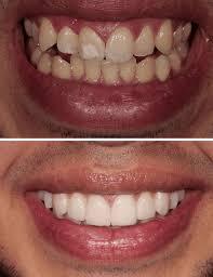 Veneers Vs Lumineers Best Dentists In Los Angeles For Veneers