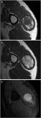 intramuscular spindle cell lipoma of