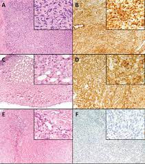 With chronic inflammation of the peritoneum associated with the latter being postulated as an inducing factor in the pathogenesis of this tumor. B7 H1 Expression In Malignant Pleural Mesothelioma Is Associated With Sarcomatoid Histology And Poor Prognosis Journal Of Thoracic Oncology