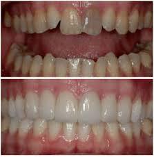 Реставрация зубов показания и методы Статьи по стоматологии  Реставрация зубов до и после