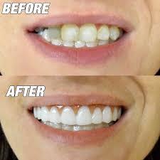 reusable veneer teeth