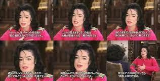 マイケル ジャクソン 病気