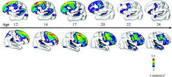 Autism and Schizophrenia Emerging study