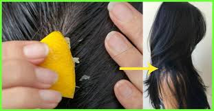 10 simple home remes to detox your hair