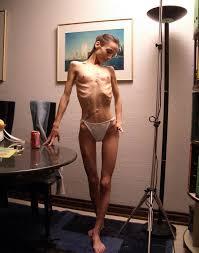 Anorexic women xxx free