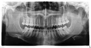 childrens dental xrays