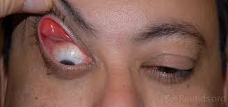 Check it for symmetry and distortion. Floppy Eyelid Syndrome