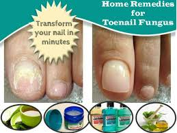 remes for the removal of toenail fungus