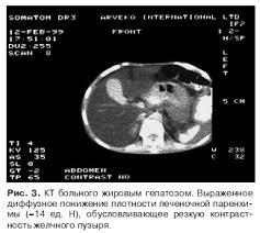 реферат по диффузным поражениям печени КТ при жировом гепатозе наиболее информативна выявляет диффузное увеличение печени наряду с уменьшением плотности её паренхимы она составляет 64% 1