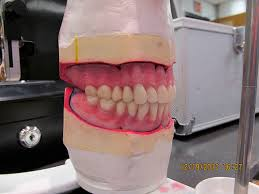 teeth setting setup of mandibular teeth and festooning man chans eportfolio