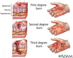Everyone Should Know This Healing Miracle For Burns First