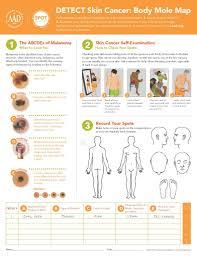 Mole Chart For Skin Cancer Melanoma A Preventable Killer Sentry Biopharma Services Inc