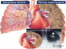 Презентация на тему Хроническая обструктивная Болезнь Легких  6