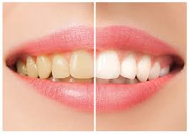 blame hollywood holly willoughby and even those high street wearing reality stars because white teeth are in