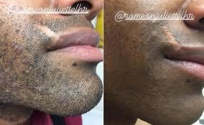 ingrown hair removal before after photos ingrown laser hair removal nyc manhattan