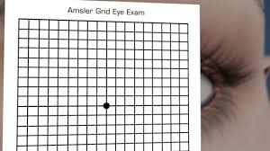 Age Related Macular Degeneration Eye Chart Amsler Grid