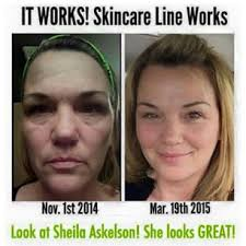Exfoliating Peel Let Health And Wealth Rhyme For You