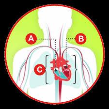 Right Vs Left Sided Heart Failure Chart Types Of Heart Failure American Heart Association