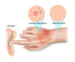 Image result for dermatitis