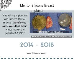 Mentor Breast Implants Size Chart Pin On Breast Implant Illness Bii