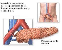 Diabetul zaharat de tip 1 : Simptome si tratament