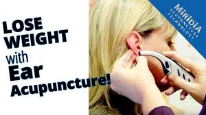 Ear Acupuncture For Weight Loss Youtube