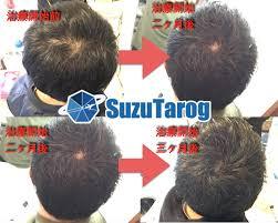 写真あり28歳で頭頂部がハゲてきたけどaga治療で劇的に改善した話