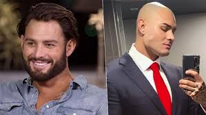 MAFS Sam Ball (Or Should We Say) Bald Looks Unrecognisable After  Reactivating His Instagram! | Hit Network