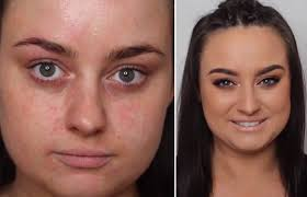 how to hide eczema with makeup