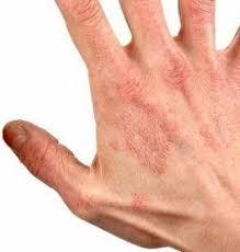 Натурален крем ТХЛФ ( yiganerjing ) против псориазис дерматит екзема сърбеж  обриви гъбички | Безплатно.net