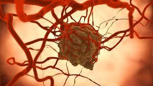 kanser metastaz ile ilgili görsel sonucu