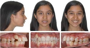 crossboworthodontic