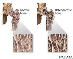 osteoporosis essay osteoporosis term paper essay on osteoporosis