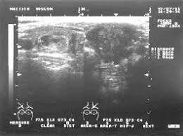 Ультразвуковая диагностика щитовидной железы Статьи по  Ультразвуковая диагностика щитовидной железы