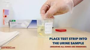 Urinalysis Osce Guide Geeky Medics
