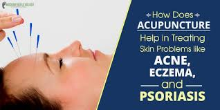 Acupuncture for Skin Problems - Treat Acne Eczema and Psoriasis ...